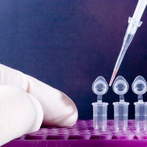 b0309baa3cb263528033e3b72868f972 300x300 - ПЦР тестирование совместно с Казахстанской лабораторией - результат через 1 день
